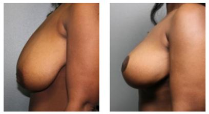 Sacramento Breast Reduction Before and After