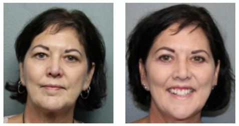 Eyelid Surgery Before and After