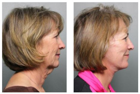 Sacramento Facelift Before and After